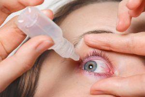 Ojos rojos: Causas y soluciones